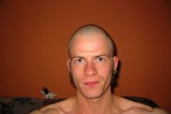 Glatze